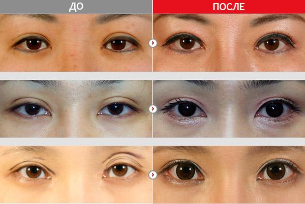 Глаза после операции